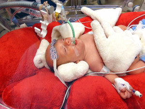 Nemocnice zkvalitňuje léčbu nedonošených dětí