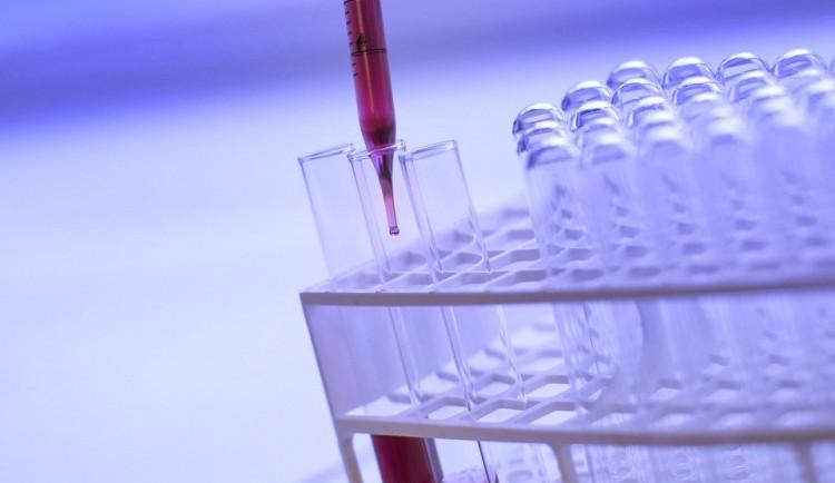 Muž hospitalizovaný v budějovické nemocnici koronavirus nemá