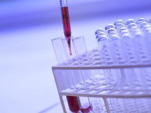 Do dnešního večera zaznamenali hygienici na jihu Čech osm nových případů COVID-19, v regionu je 77 pozitivních osob