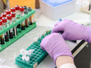 Česká společnost AIDS pomoc obnovila testování HIV v pevných CheckPointech