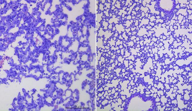 Čeští vědci otestovali novou protilátku proti covidu-19, brání viru mutovat