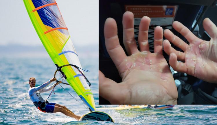 Jak bolí olympiáda? Takhle vypadaly ruce českého windsufera na konci dne